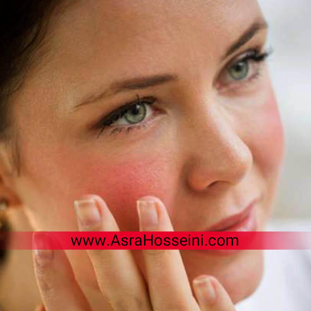 پوست حساس پوست خشک