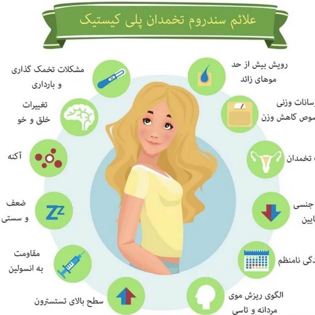 روش های درمان تخمدان پلی کیستیک