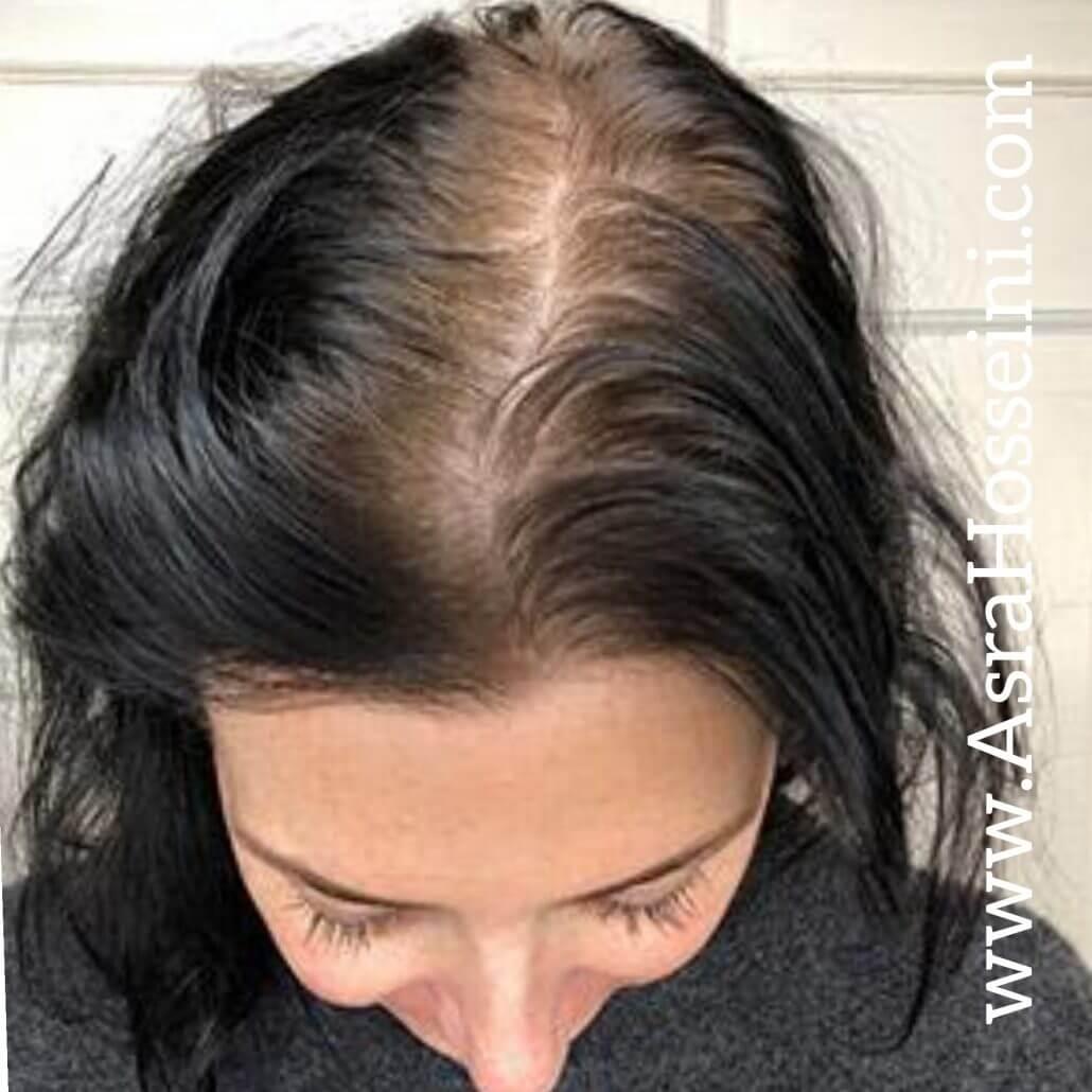 اشتباهات رایجی ک یم تار مو روی سرتان نمی گذارد