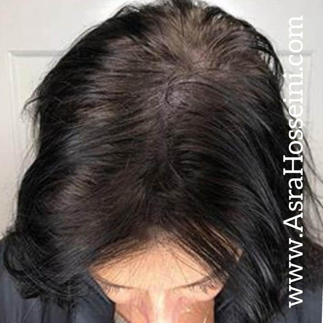 اشتباهات رایج در مو
