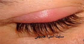 حساسیت چشم